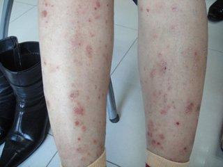 中年女性患了牛皮癣要如何治疗呢