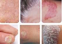 女性红皮病型银屑病治疗应注意什么